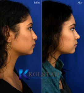 san diego nose job photos