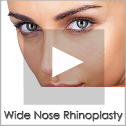 wide nose rhinoplasty before after