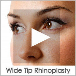 wide tip rhinoplasty before after