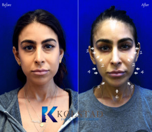 best juvederm san diego top voluma injector la jolla