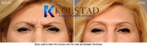 botox and filler best doctor top injector