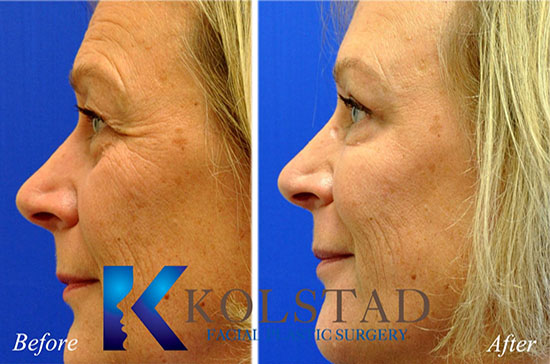 botox browlift crowsfeet smile lines eyelift cost before and after san diego la jolla del mar