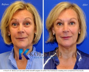 botox browlift forehead wrinkles frown lines san diego del mar la jolla
