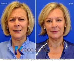 botox browlift nonsurgical browlift fillers 11s san diego la jolla