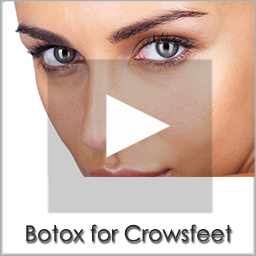 botox crowsfeet
