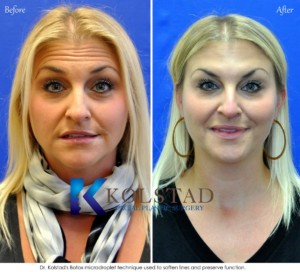 botox expert doctor forehead wrinkles cost specials natural appearance san diego la jolla