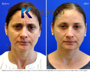 botox glabella 11s filler eyelift antiaging tired la jolla san diego plastic surgeon