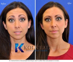 botox natural best injector san diego wrinkles preventative antiaging