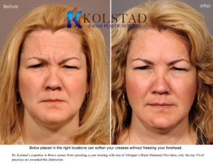 botox natural results glabella 11s top doctor cost specials