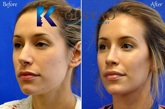 cheek augmentation filler juvederm injection injectable voluma san diego la jolla cost natural