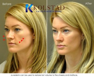 cheek fillers augmentation volume loss juvederm top doctor best injector san diego