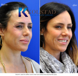 crowsfeet botox treatment cost preventative natural results best injector san diego la jolla