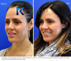 crowsfeet botox xeomin dysport smile lines eyes undereyes sd san diego best injector