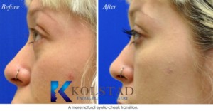 dark circles undereye filler tear trough correction microcannula injections cost best top san diego del mar la jolla