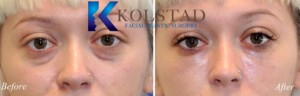 dark circles undereye filler tear trough correction microcannula injections cost san diego la jolla