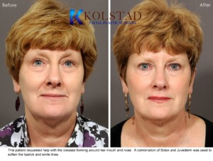 Fillers juvederm smile lines sd botox antiaging prevention plastic surgery la jolla