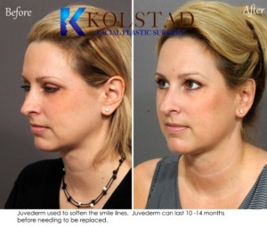 juvederm specials san diego smile lines filler correction natural facial plastic surgery expert