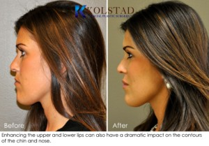 la jolla carmel valley lip augmentation fillers nonsurgical juvederm san diego restylane cost best doctor