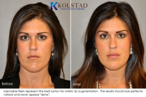 la jolla lip augmentation juvederm fillers top injector facial plastic surgery natural artistic never overdone