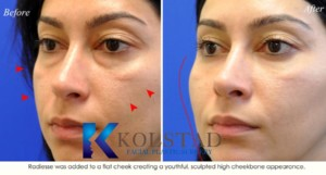 la jolla san diego under eye filler specialist volume correction cheeks radiesse best injector southern california