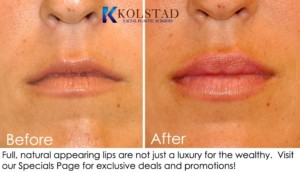 lip fillers la jolla san diego solana beach injectable filler juvederm restylane expert injector cost