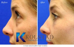 liquid eyelift injections filler tear trough dark circles cost best injector microcannula la jolla del mar