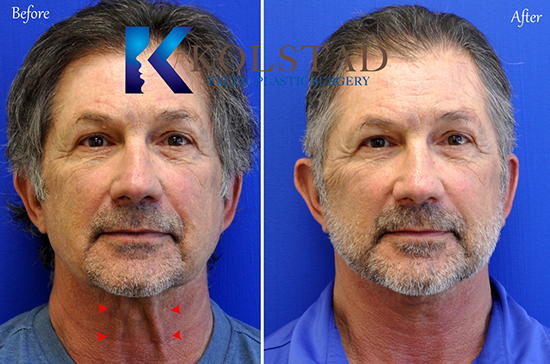 male facelift san diego