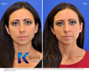 natural botox san diego la jolla del mar preventative expert injector forehead wrinkles