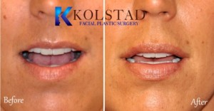 natural lip augmentation san diego la jolla del mar best filler injector facial plastic surgery