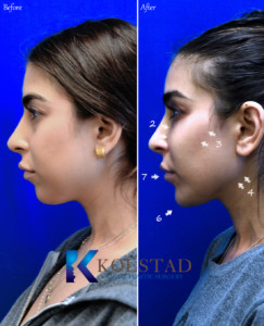 non surgical chin augmentation san diego