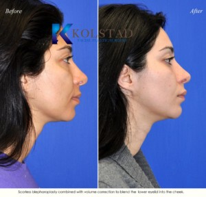 nonsurgical under eye filler injections san diego del mar la jolla lower blepharoplasty radiesse cheeks