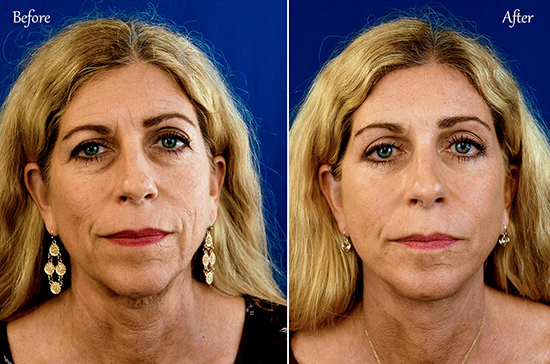 San Diego Full Face Lift