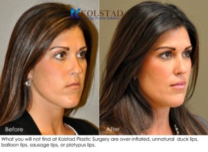 san diego la jolla lip augmentation nonsurgical filler injector juvederm restylane natural lips