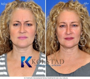 sd botox forehead 11s wrinkles natural del mar la jolla best doctor