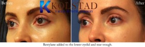 under eye filler tear troughs restylane cosmetic injections treatment antiaging rejuvenation refresh lower eyes