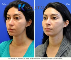 under eye fillers la jolla volume correction tear troughs del mar san diego best doctor injection specialist