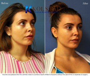 voluma juvederm restylane cheek augmentation filler undereyes dark circles injections san diego la jolla
