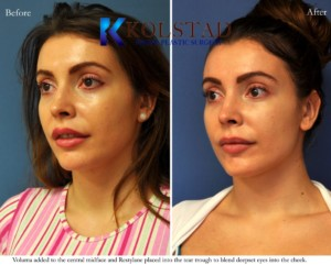 voluma juvederm restylane cheek filler augmentation dark circles undereye injections san diego la jolla