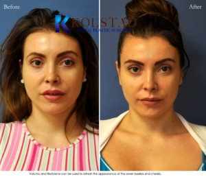 voluma juvederm restylane cheek tear troughs undereye filler injections augmentation san diego la jolla