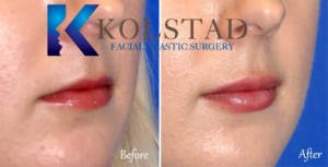 juvederm lips san diego la jolla carmel valley best lip augmention natural results nonsurgical