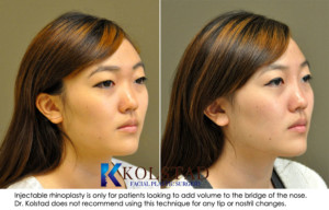 asian rhinoplasty la jolla del mar rancho santa fe non surgical nose job san diego best nose surgeon