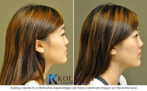 asian rhinoplasty san diego la jolla carlsbad non surgical nose job injectable filler cost pricing specials