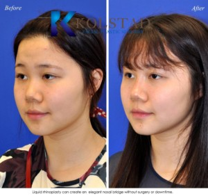 asian rhinoplasty san diego la jolla del mar liquid nose job injectable filler best plastic surgery nonsurgical