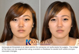 asian rhinoplasty san diego la jolla nonsurgical nose job nasal bridge augmentation juvederm radiesse specials