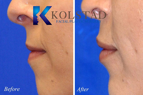 beautiful natural lip augmentatinon injectable dermal fillers fuller shape perfect pout best results