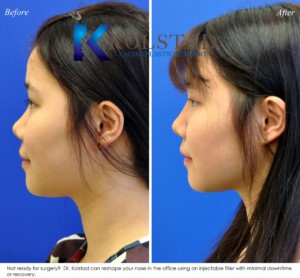 best asian liquid rhinoplasty san diego solana beach encinitas nonsurgical nose job injectable dermal filler