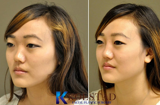 best asian rhinoplasty la jolla del mar nonsurgical injectable filler nose implant bridge augmentation