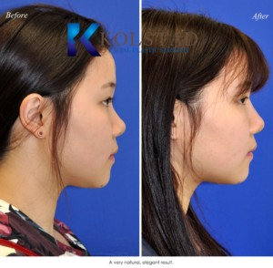 best asian rhinoplasty la jolla san diego injectable filler specialist liquid nose job natural results before after photos
