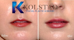 best lip augmentation san diego la jolla del mar top filler expert fuller lips plump pout natural