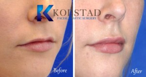 best lip augmentation san diego top filler injector natural enhancement juvederm price specials